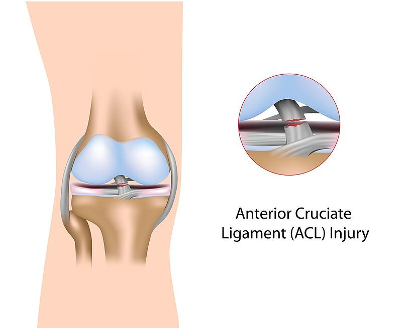 Torn acl in Texas