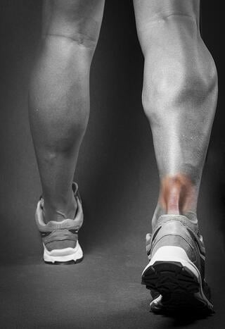 achilles-tendonitis-pain-inflammation