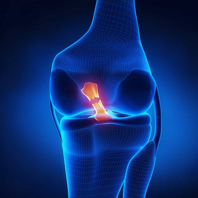 anterior-cruciate-ligament-acl.jpg