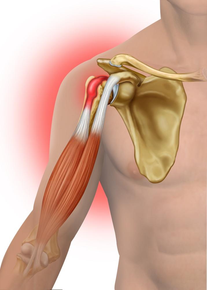 biceps tendinitis2.jpg