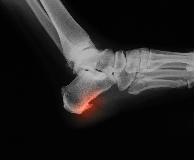 bone-spur-heel