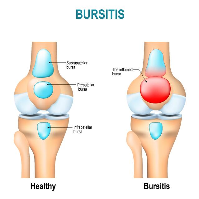Bursitis What Is It Causes And Areas Of The Body Affected