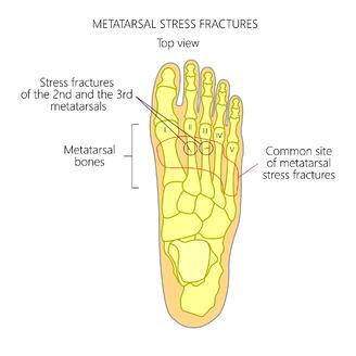 common locations of where stress fractures reside in the foot