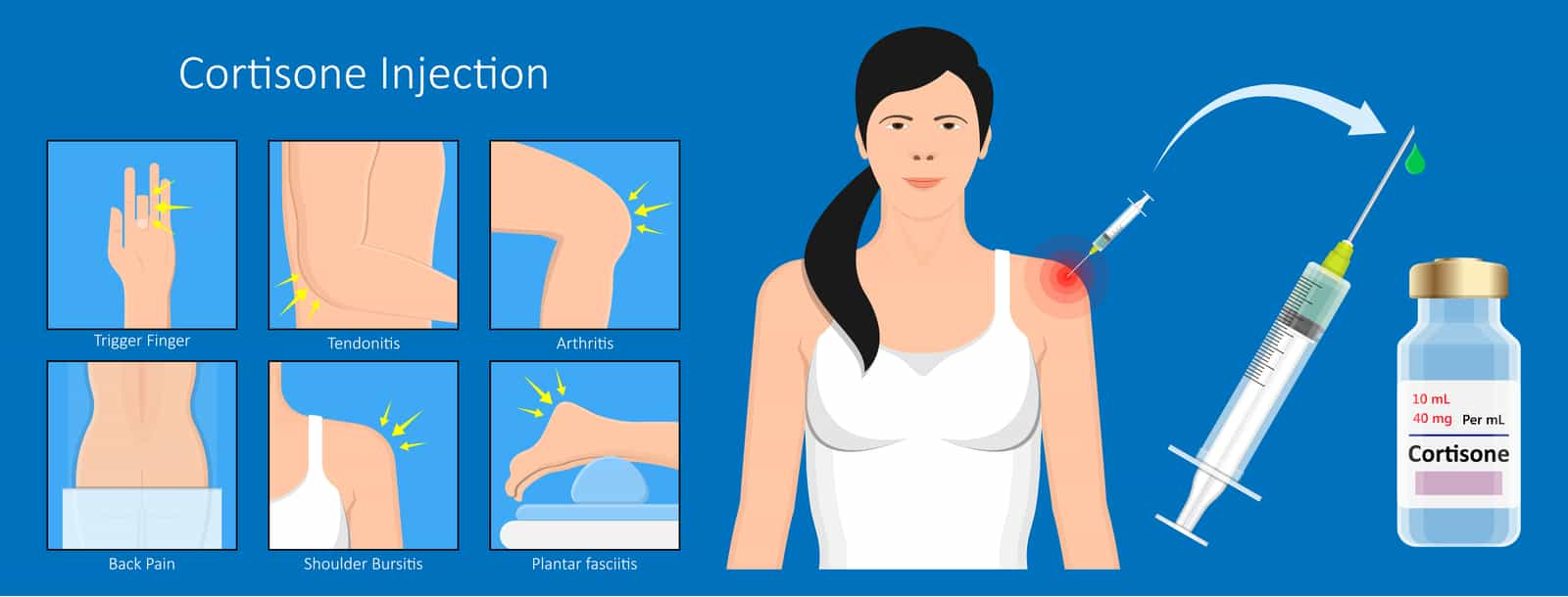 cortisone injections1