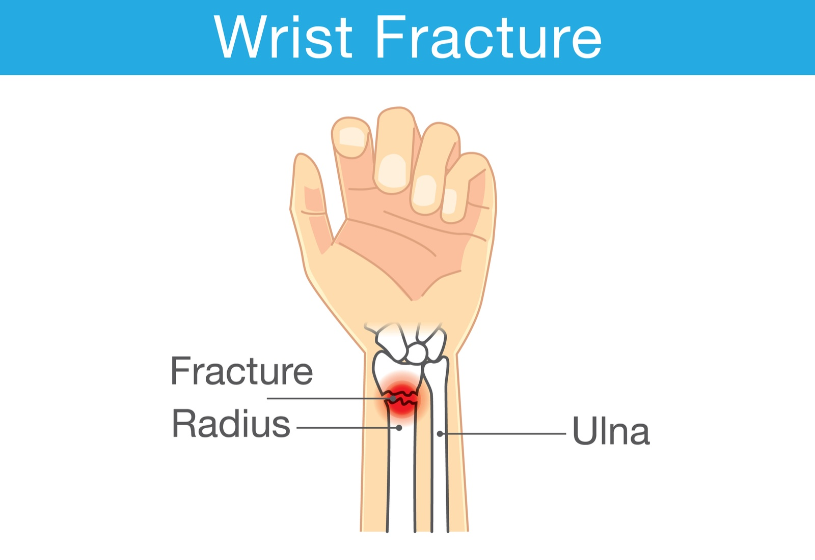 distal radial fracture causes symptoms and treatments