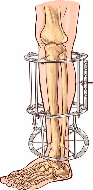 external-fixation-leg