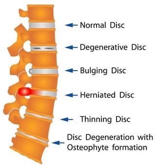 herniated disc names