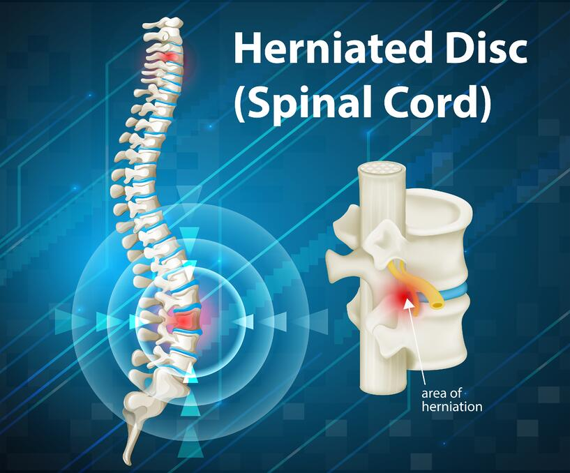 herniated disc signs and symptoms