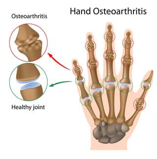 osteoarthritis-hand-drawing.jpg
