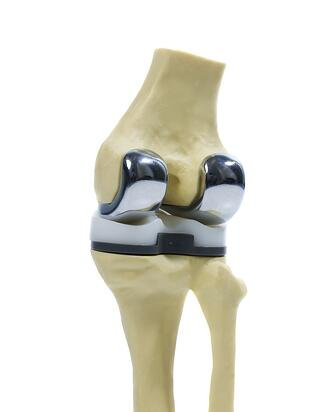 what is a knee replacement