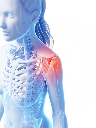 sports-injury-shoulder-woman