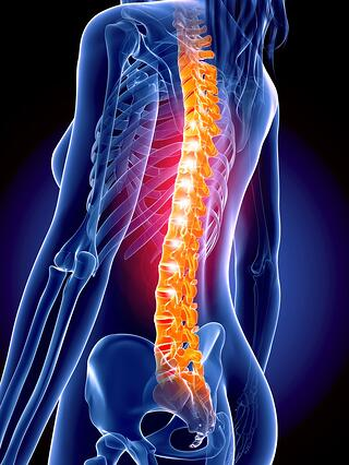 spine_woman_surgery