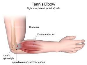 tennis elbow tendonitis