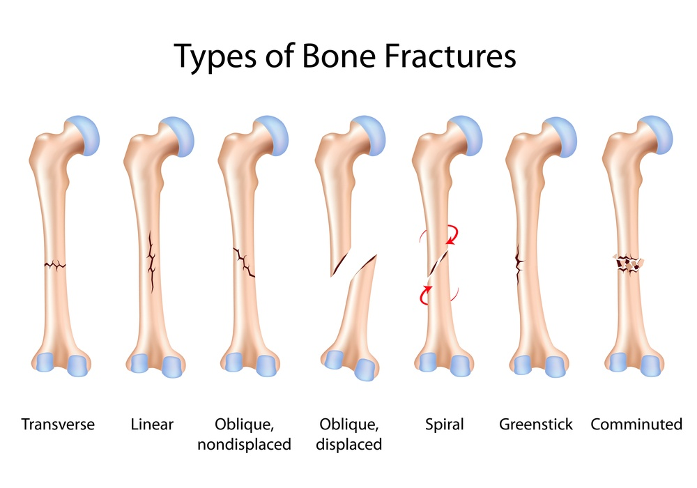 fracture care treatment: when is a cast not good enough?, Cephalic Vein