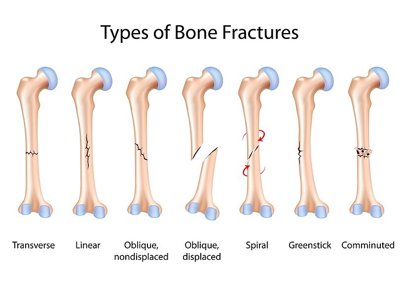 fracture care treatment: when is a cast not good enough?, Human Body