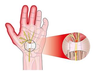 The carpal tunnel houses the median nerve. When it's compressed, pain and numbness can lead to carpal tunnel syndrome.
