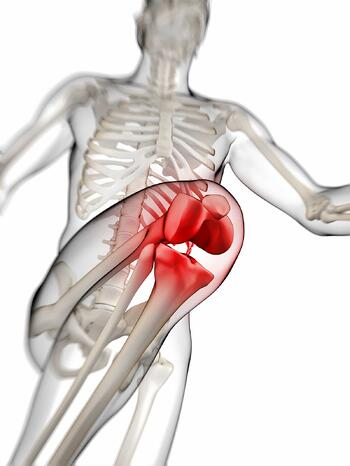 Any kind of inflammation, misalignment or injury to the kneecap can result in runner's knee.