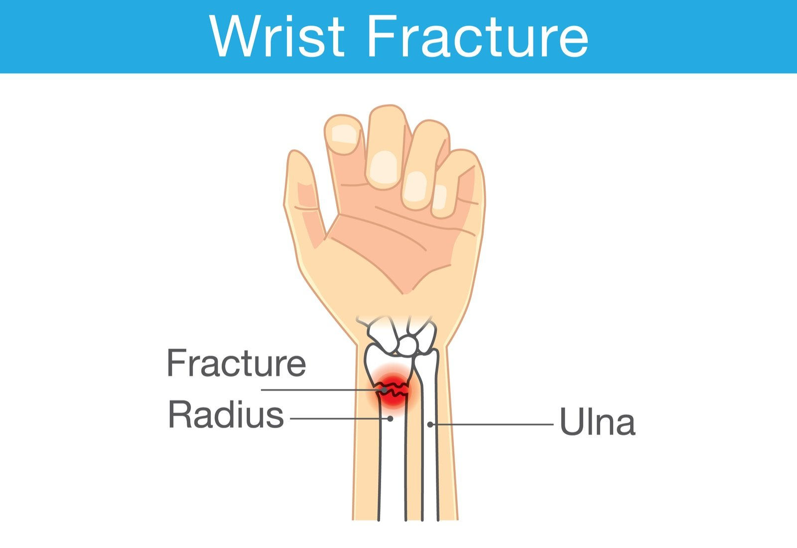 How to diagnose and treat radial fractures